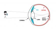 image on optic nerve